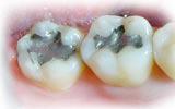 ประเภทแรก คือ Amalgam (วัสดุอุดฟันสีเงิน)