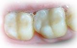 ประเภทที่สอง คือ Composite (วัสดุอุดฟันสีเหมือนฟัน)